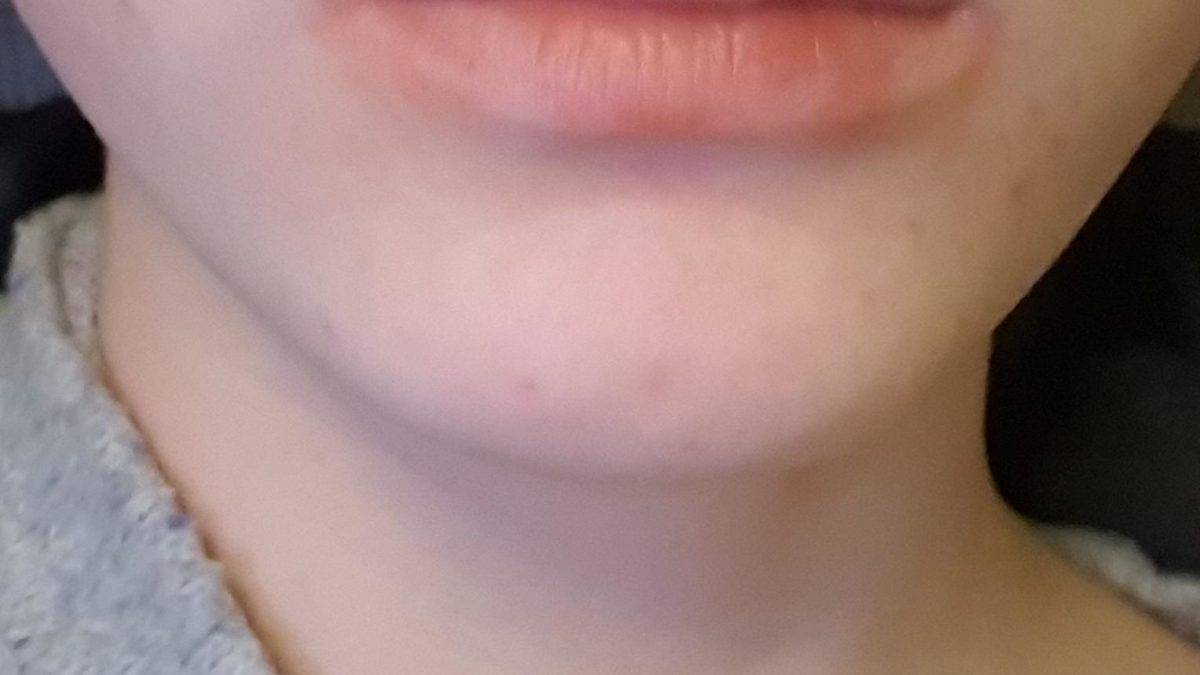 How to apply lipstick correctly and use a lip liner?  My lips are incredibly undefined in its borders and color.